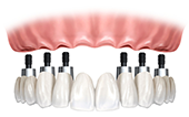 Image Fixed bridge with 6 dental implants