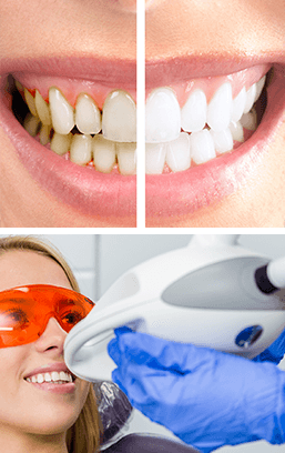 Image zoom whitening services
